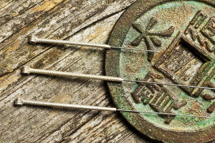 Despre acupunctura ace